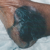 Photo of a suspected deep tissue injury
