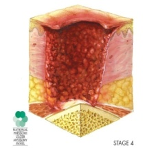 Cross-section illustration of skin with a deep open ulcer exposing bone and tendon