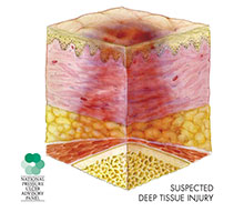 Cross-section illustration of skin with a deep tissue injury